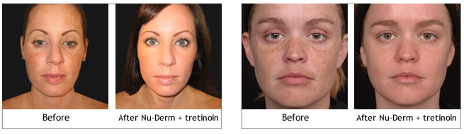 Obagi Nu-Derm Systems before and afters