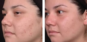 Acne before and after 1