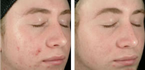 Acne before and after 2