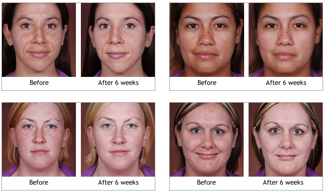 Obagi-C® Rx System before and afters