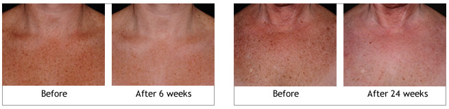 Obagi ELASTIderm Decolletage System before and afters