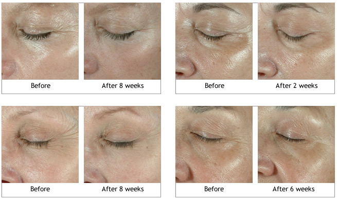 Obagi ELASTIderm Eye Treatment