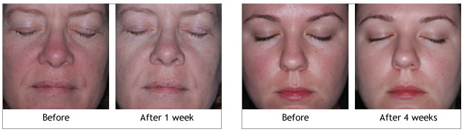 Obagi Rosaclear System before and afters